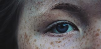 Get Rid Of Freckles