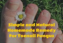 Homemade Remedy For Toenail Fungus