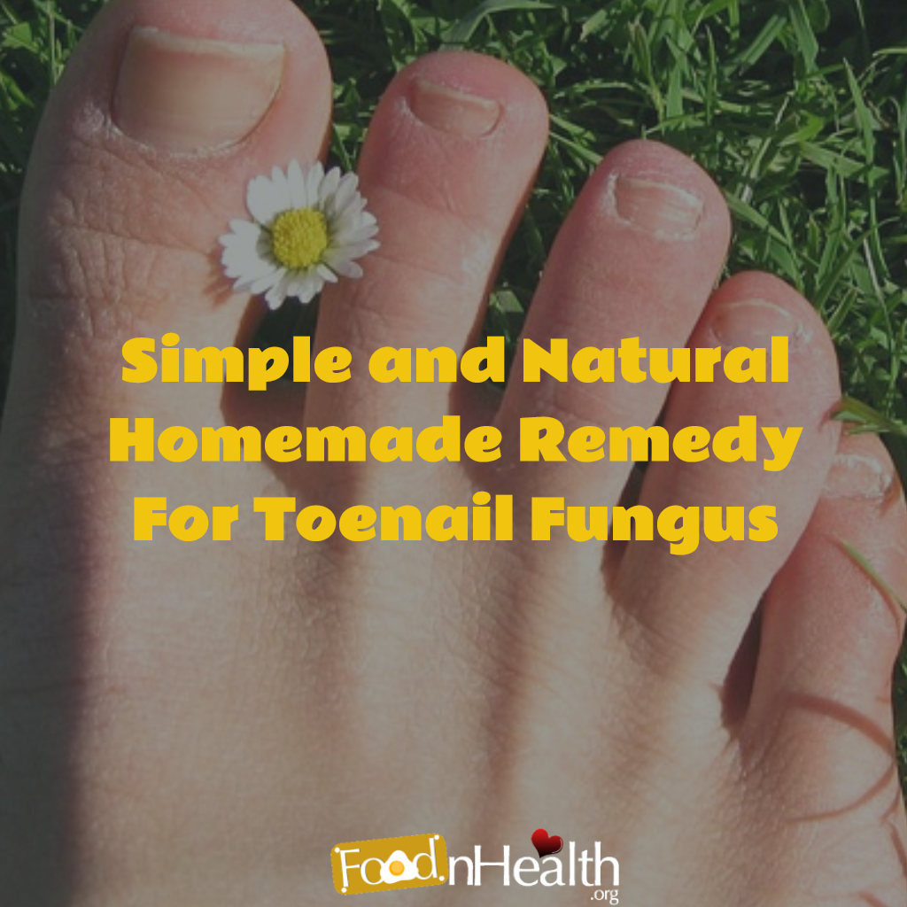 Homemade-Remedy-For-Toenail-Fungus.png