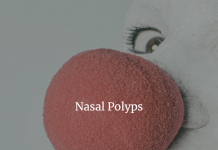 Nasal polyps - Symptoms and causes