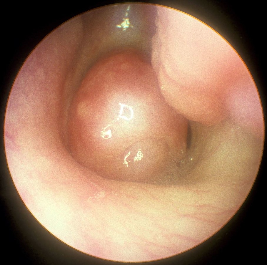 Large choanal polyp seen with nasal endoscopy