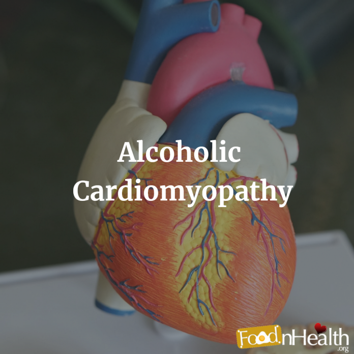 Alcoholic cardiomyopathy is a type of acquired dilated cardiomyopathy associated with long-term heavy alcohol consumption (commonly defined as >80 g per day over a period of at least five years)