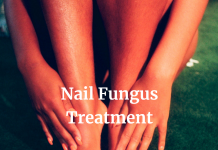 Toenail Fungus Treatment: Steps to Get Rid of It Fast!