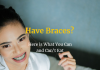 Have Braces? Here is What You Can and Can't Eat