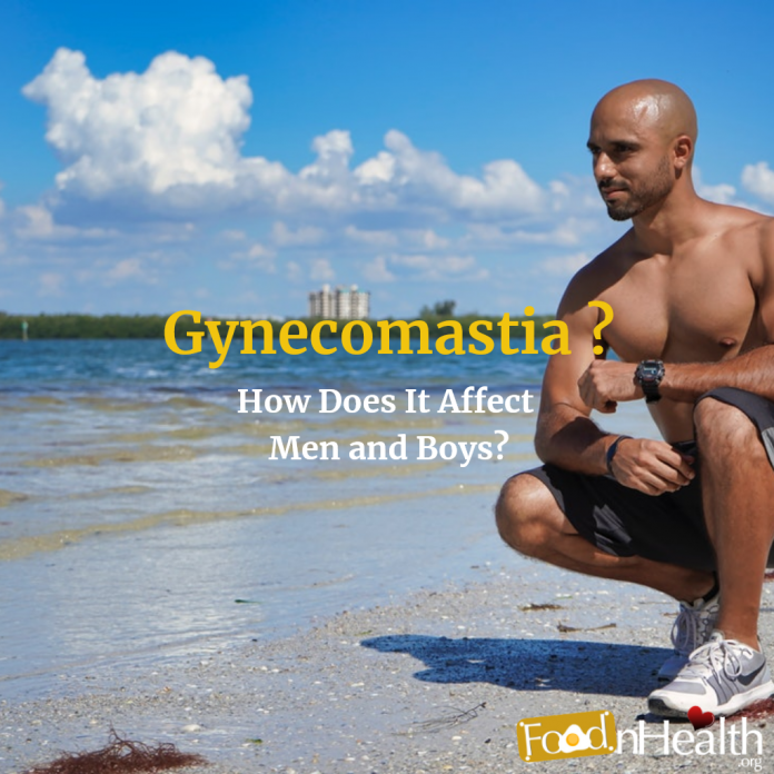 Enlarged Male Breasts (Gynecomastia)