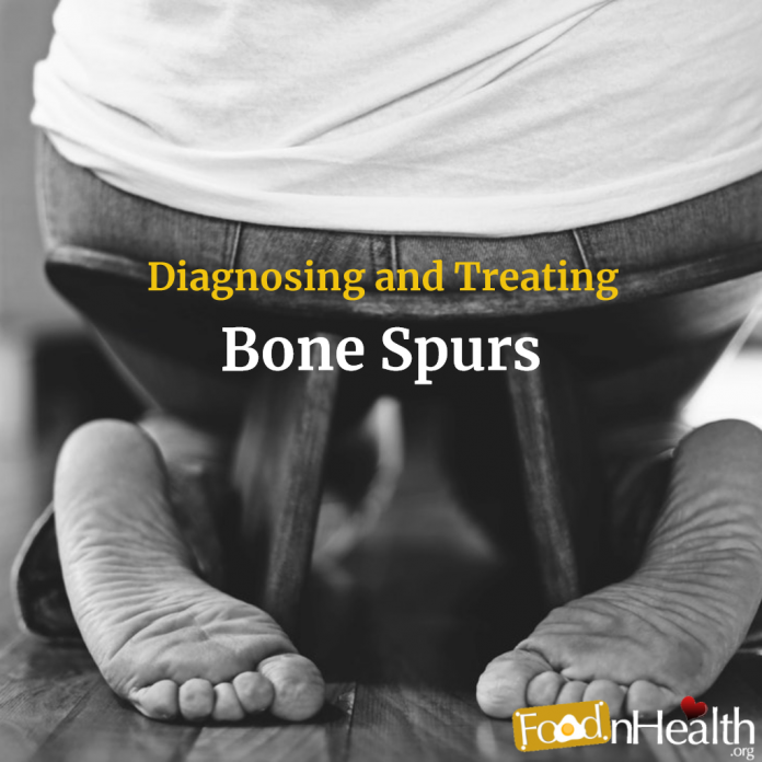 Diagnosing and Treating Bone Spurs