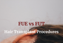 Hair Transplant Procedures - FUE vs FUT