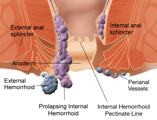 Home Treatment & Remedies for Hemorrhoid Relief