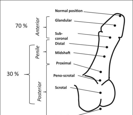 Is Hypospadias a Genetic Condition?