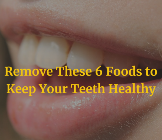 Remove These 6 Foods to Keep Your Teeth Healthy
