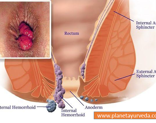 Effective Home Remedies for Hemorrhoids/Piles
