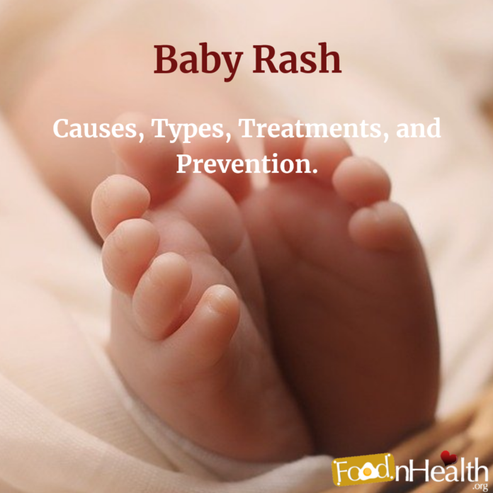 Baby Rash: Causes, Types, Treatments, and Prevention.