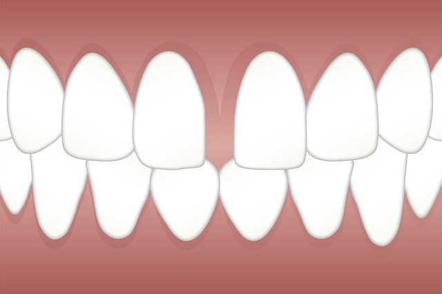 Gap in Your Front Teeth: The Causes and the Solution