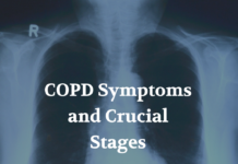COPD Symptoms and Crucial Stages